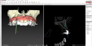 インプラント手術のための精密なシュミレーション